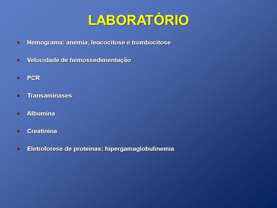 LABORATÓRIO Hemograma: anemia, leucocitose e trombocitose