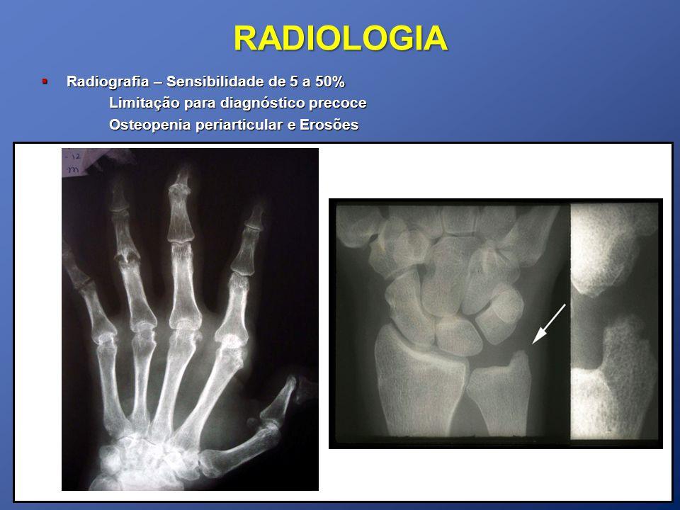 RADIOLOGIA Radiografia – Sensibilidade de 5 a 50%