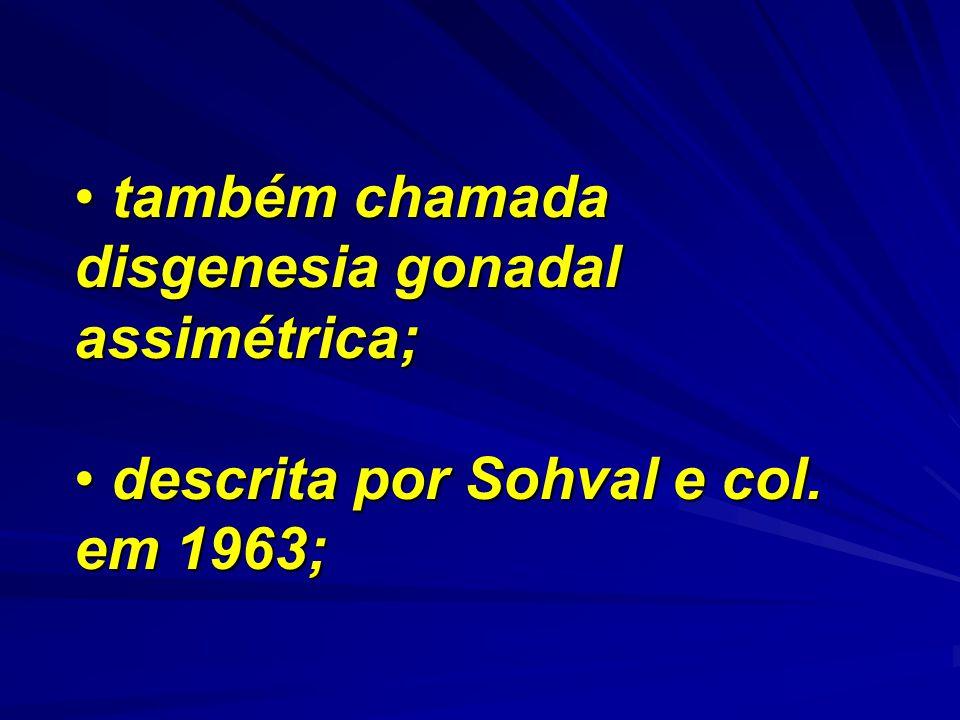 também chamada disgenesia gonadal assimétrica;