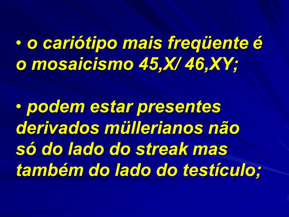 o cariótipo mais freqüente é o mosaicismo 45,X/ 46,XY;