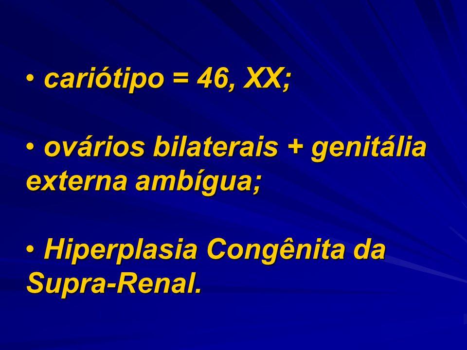 cariótipo = 46, XX; ovários bilaterais + genitália externa ambígua; Hiperplasia Congênita da Supra-Renal.