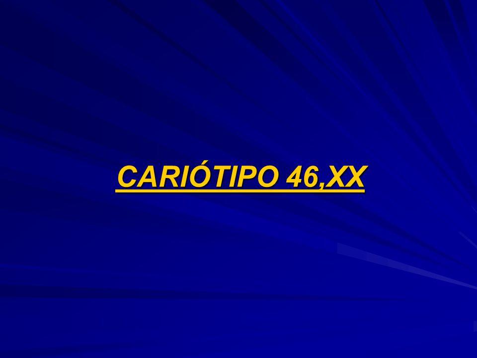 CARIÓTIPO 46,XX