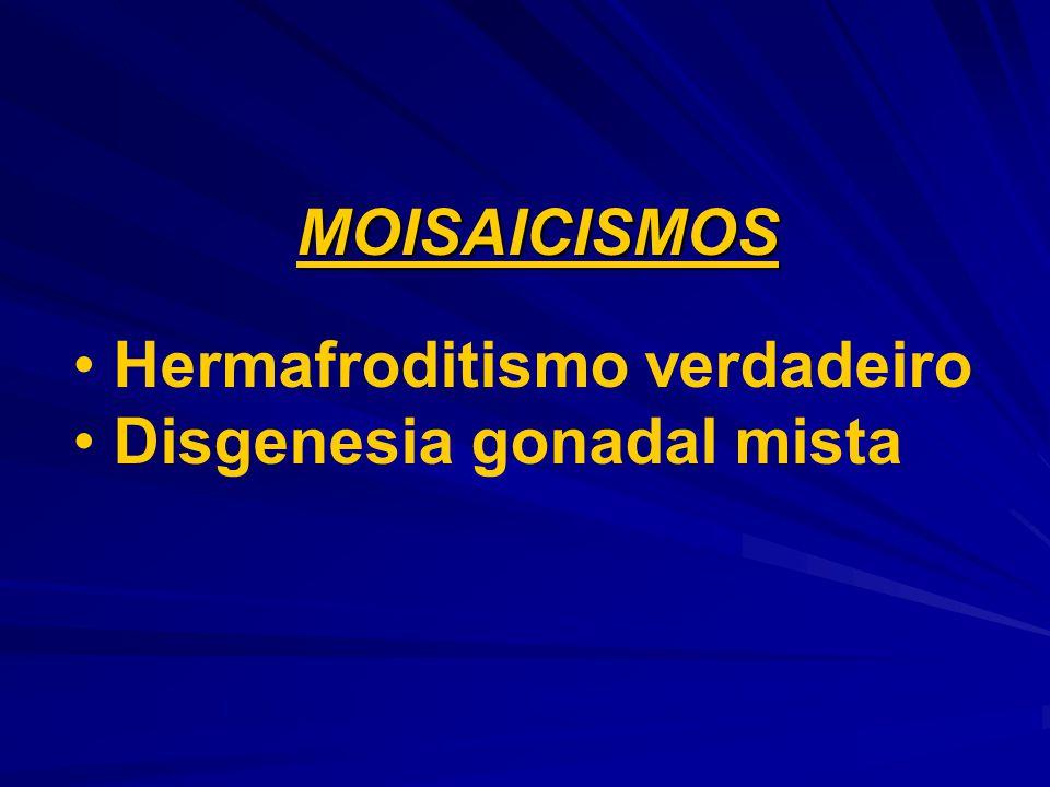 MOISAICISMOS Hermafroditismo verdadeiro Disgenesia gonadal mista