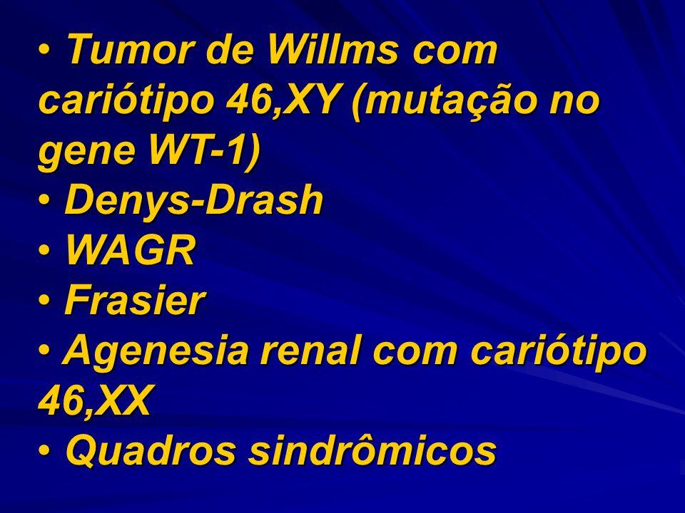 Tumor de Willms com cariótipo 46,XY (mutação no gene WT-1)