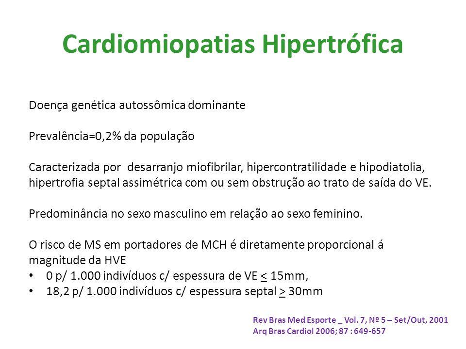 Cardiomiopatias Hipertrófica