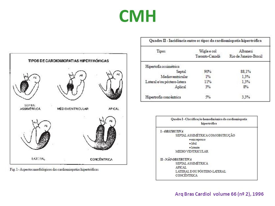 CMH Arq Bras Cardiol volume 66 (nº 2), 1996