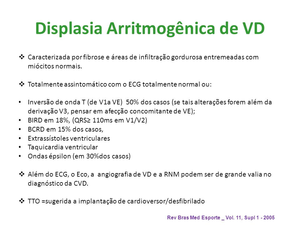 Displasia Arritmogênica de VD