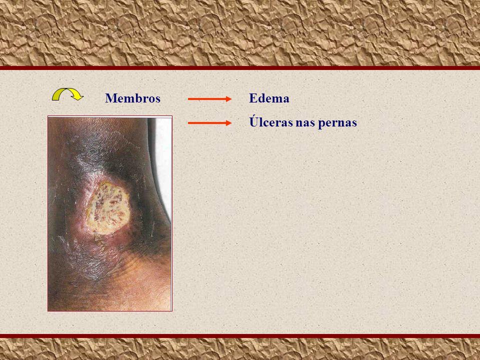 Membros Edema Úlceras nas pernas