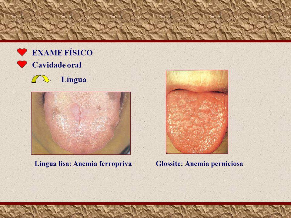 EXAME FÍSICO Cavidade oral Língua Glossite: Anemia perniciosa