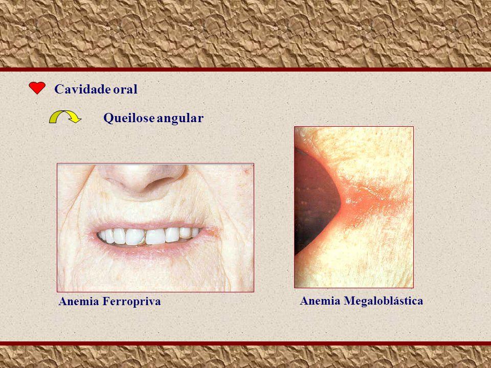 Cavidade oral Queilose angular Anemia Megaloblástica Anemia Ferropriva