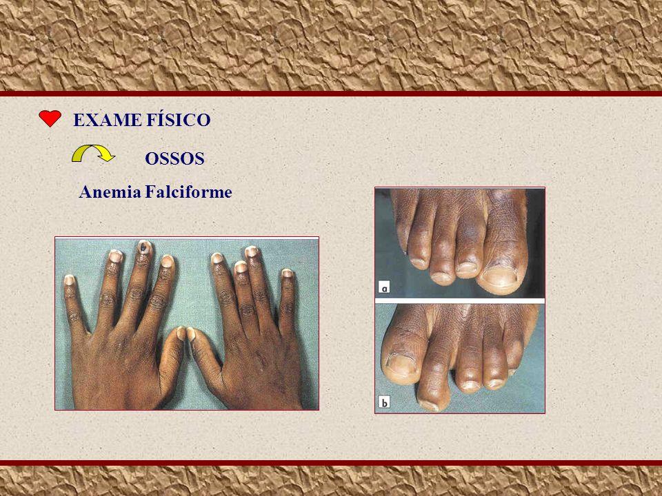EXAME FÍSICO OSSOS Anemia Falciforme