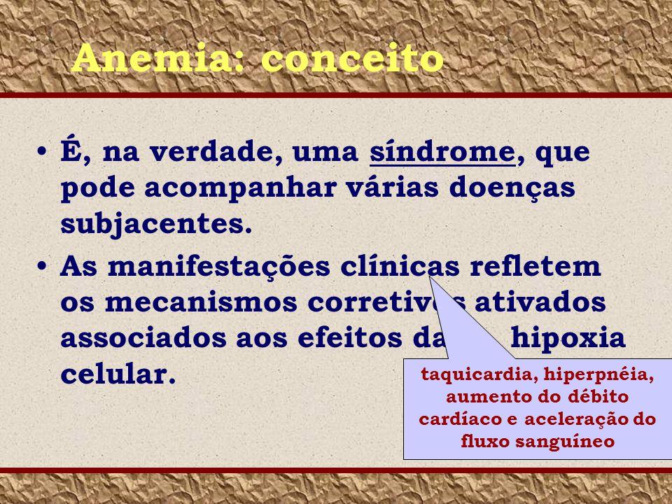 Anemia: conceito É, na verdade, uma síndrome, que pode acompanhar várias doenças subjacentes.