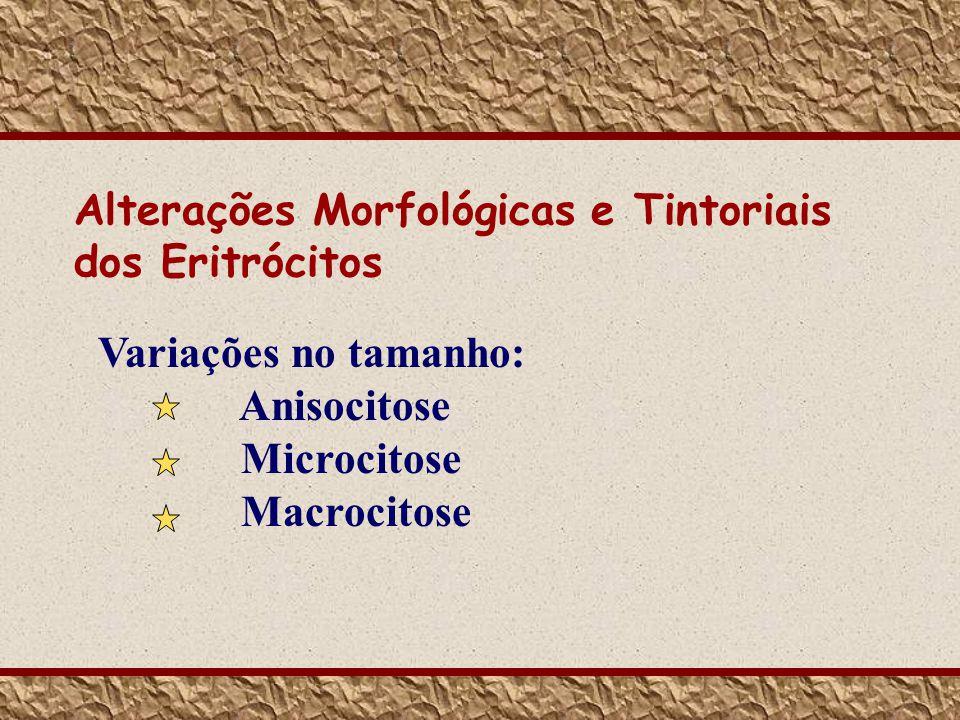 Variações no tamanho: Anisocitose Microcitose Macrocitose