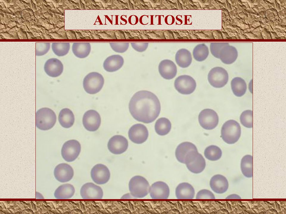 ANISOCITOSE