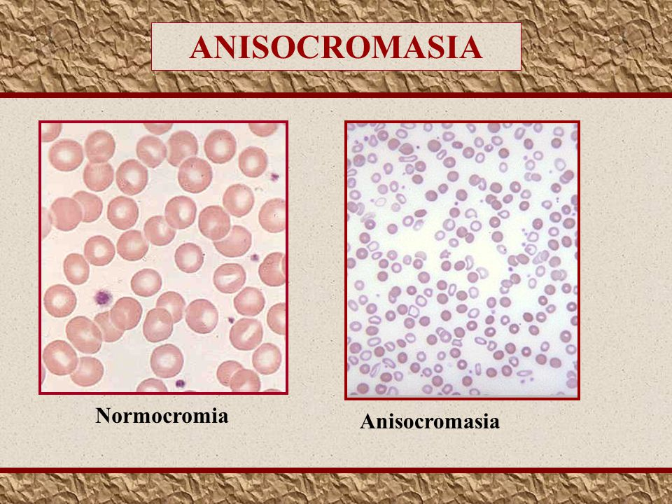 ANISOCROMASIA Normocromia Anisocromasia