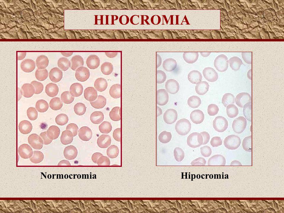 HIPOCROMIA Normocromia Hipocromia
