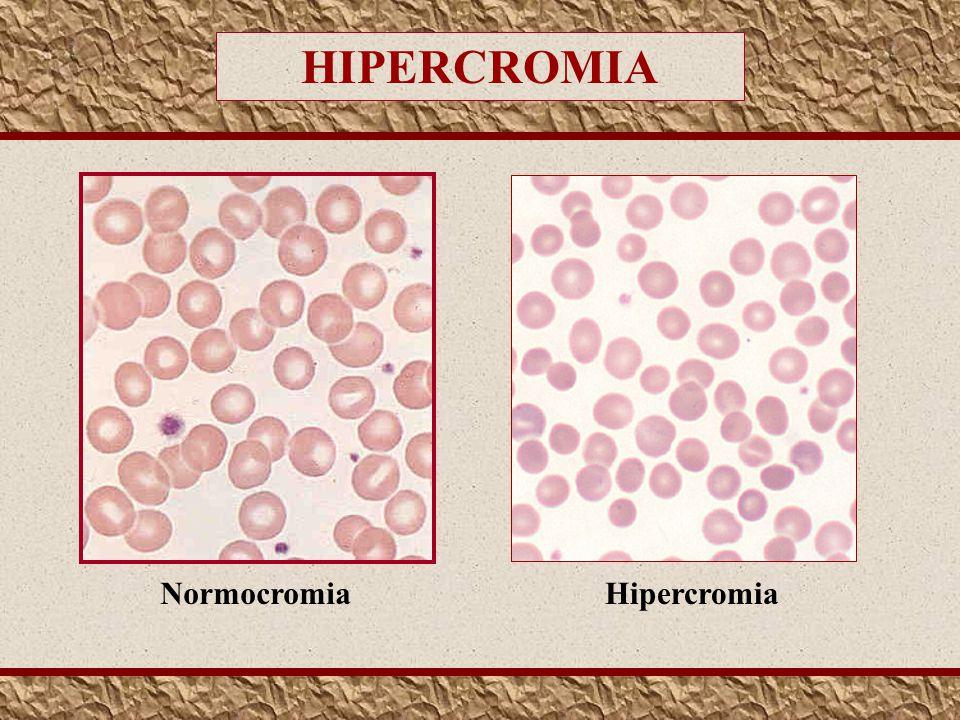 HIPERCROMIA Normocromia Hipercromia
