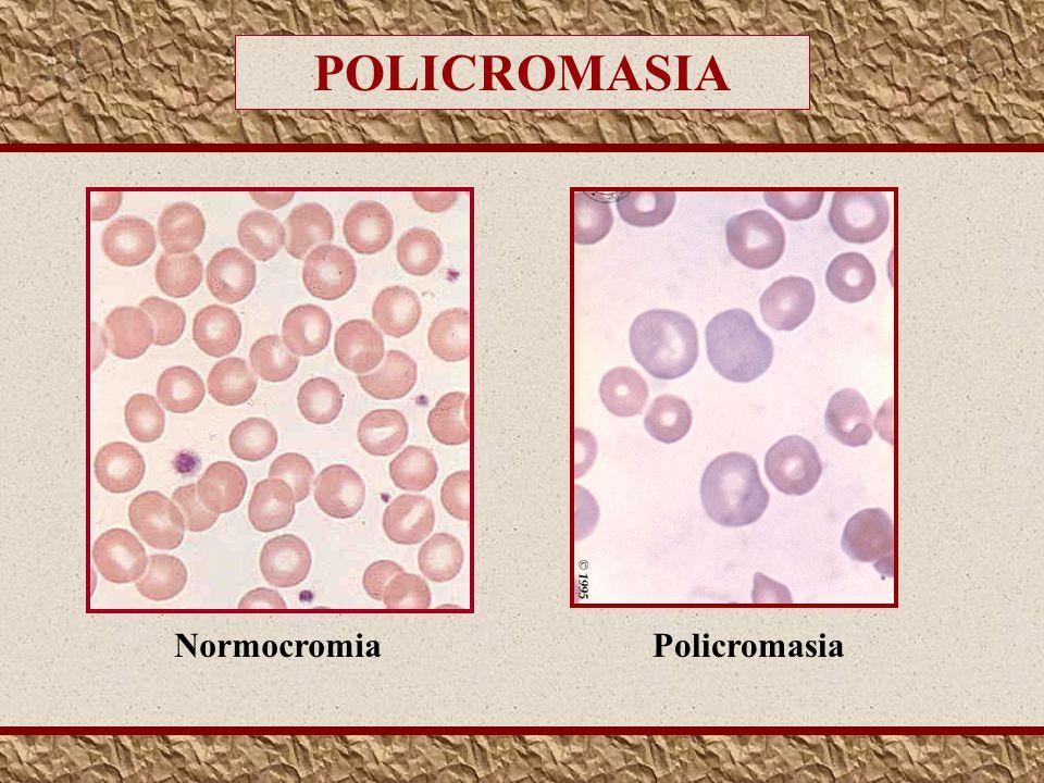 POLICROMASIA Normocromia Policromasia