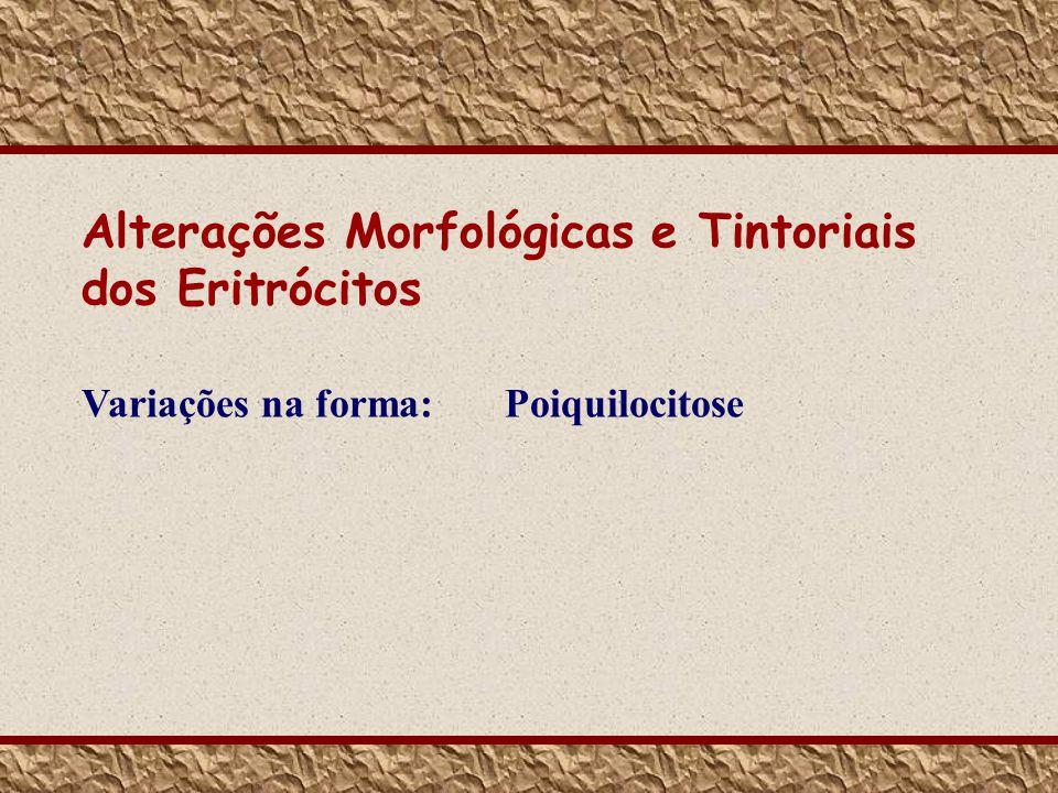 Alterações Morfológicas e Tintoriais dos Eritrócitos