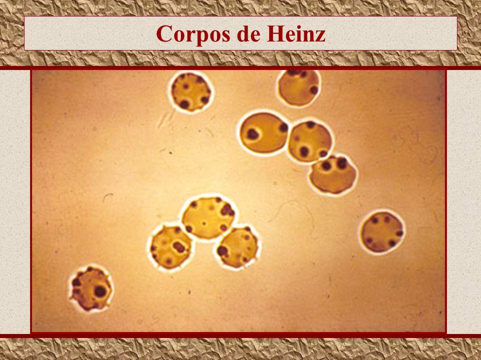 Corpos de Heinz