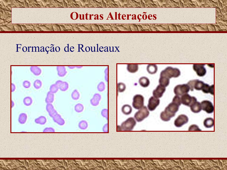 Outras Alterações Formação de Rouleaux