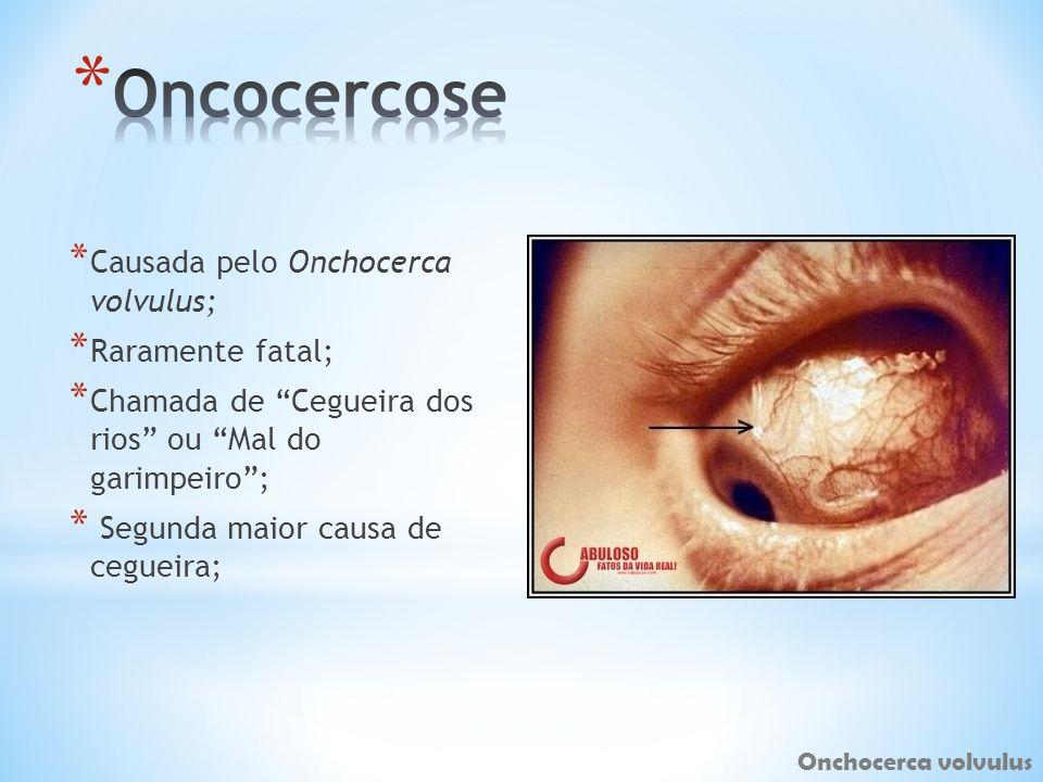 Oncocercose Causada pelo Onchocerca volvulus; Raramente fatal;
