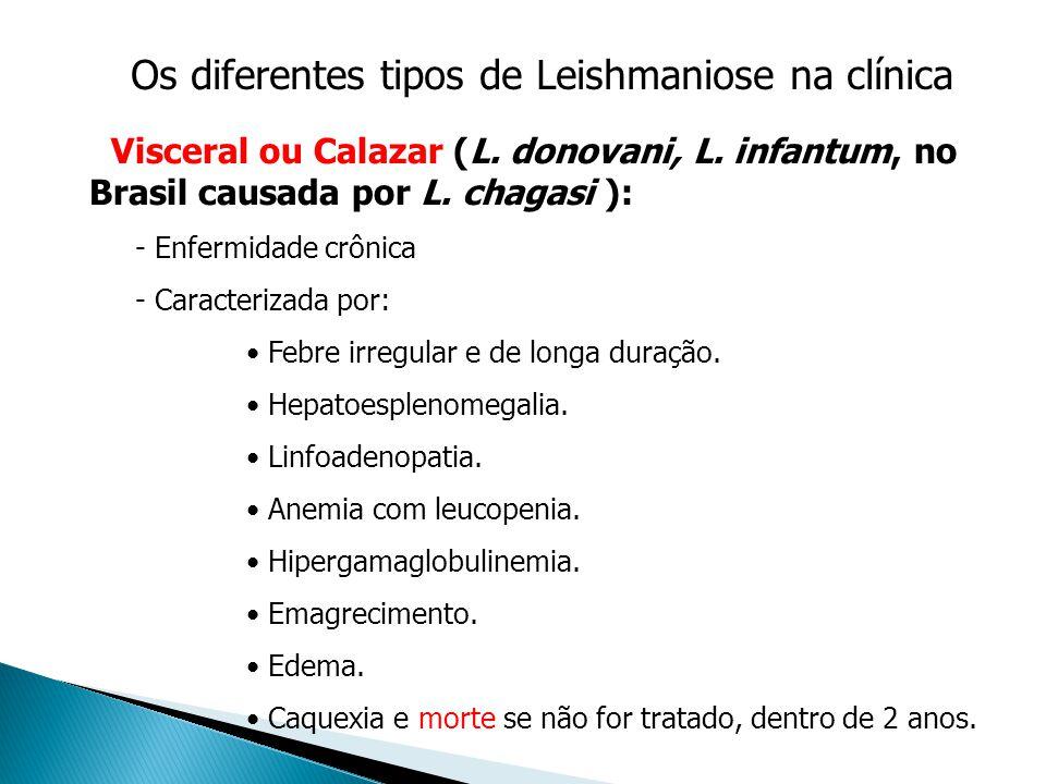 Os diferentes tipos de Leishmaniose na clínica