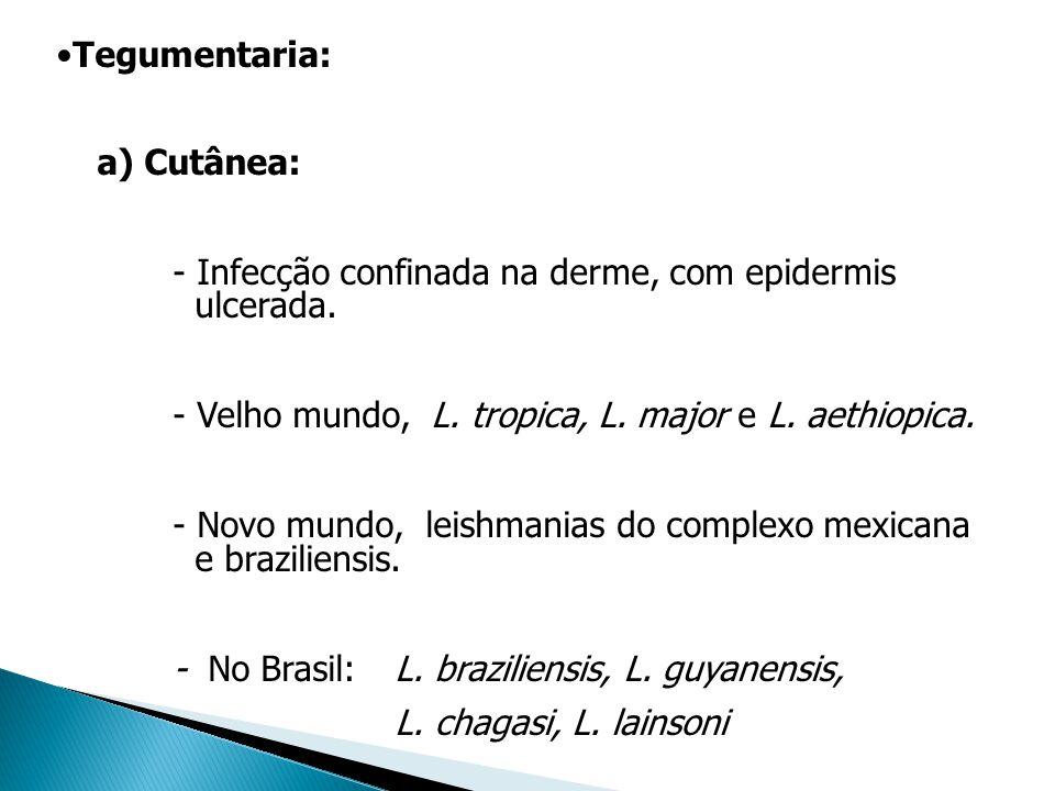 Tegumentaria: a) Cutânea: - Infecção confinada na derme, com epidermis ulcerada. - Velho mundo, L. tropica, L. major e L. aethiopica.