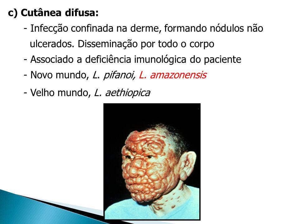 c) Cutânea difusa: - Infecção confinada na derme, formando nódulos não. ulcerados. Disseminação por todo o corpo.