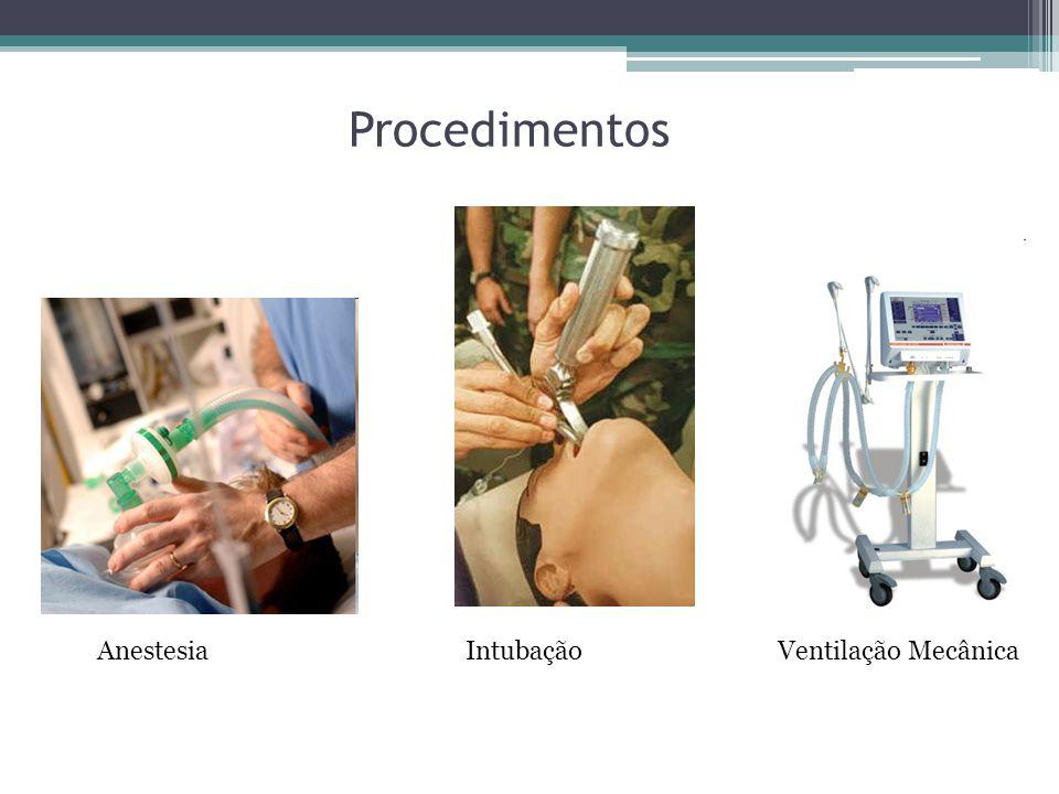 Procedimentos Anestesia Intubação Ventilação Mecânica