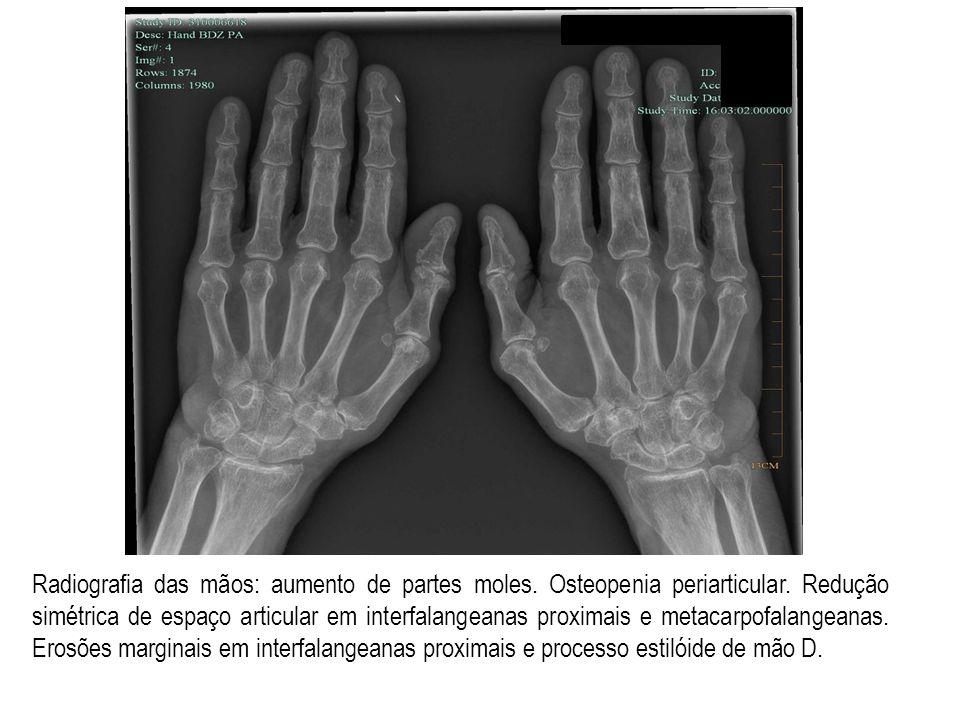 Radiografia das mãos: aumento de partes moles. Osteopenia periarticular.