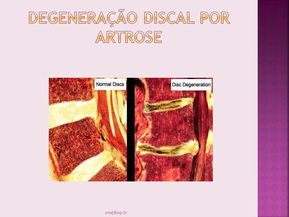 Degeneração discal por artrose