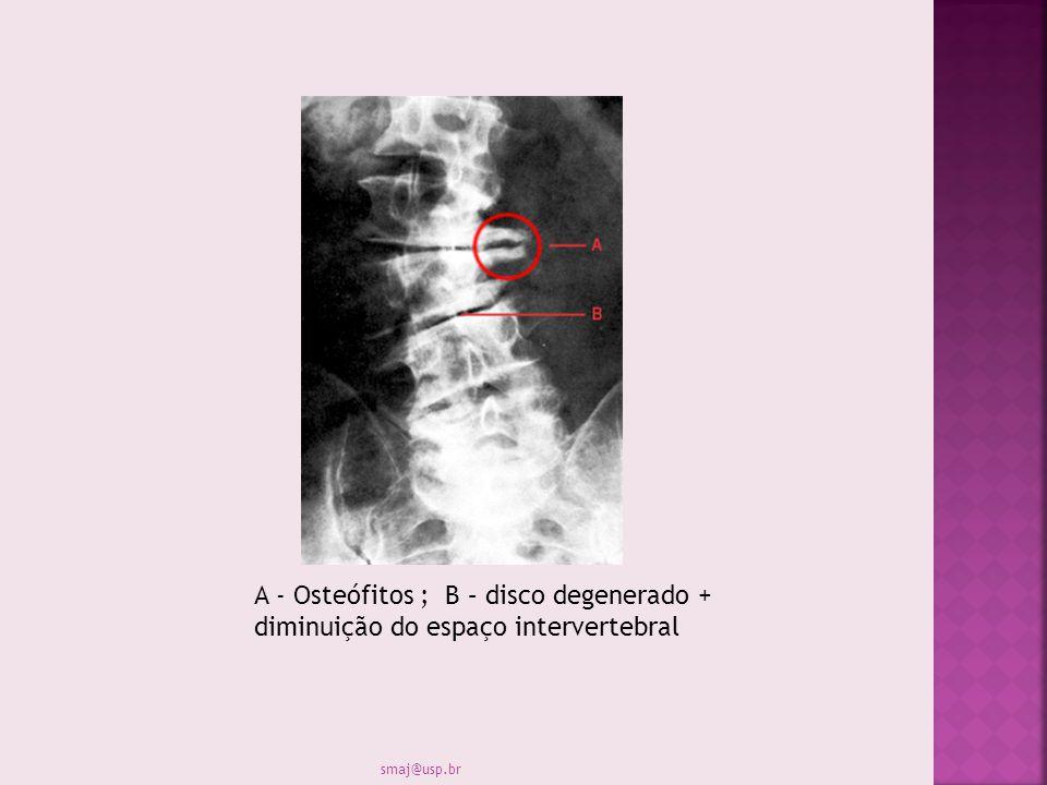 A - Osteófitos ; B – disco degenerado + diminuição do espaço intervertebral
