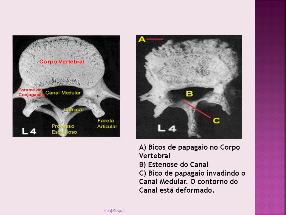 A) Bicos de papagaio no Corpo Vertebral B) Estenose do Canal C) Bico de papagaio invadindo o Canal Medular. O contorno do Canal está deformado.