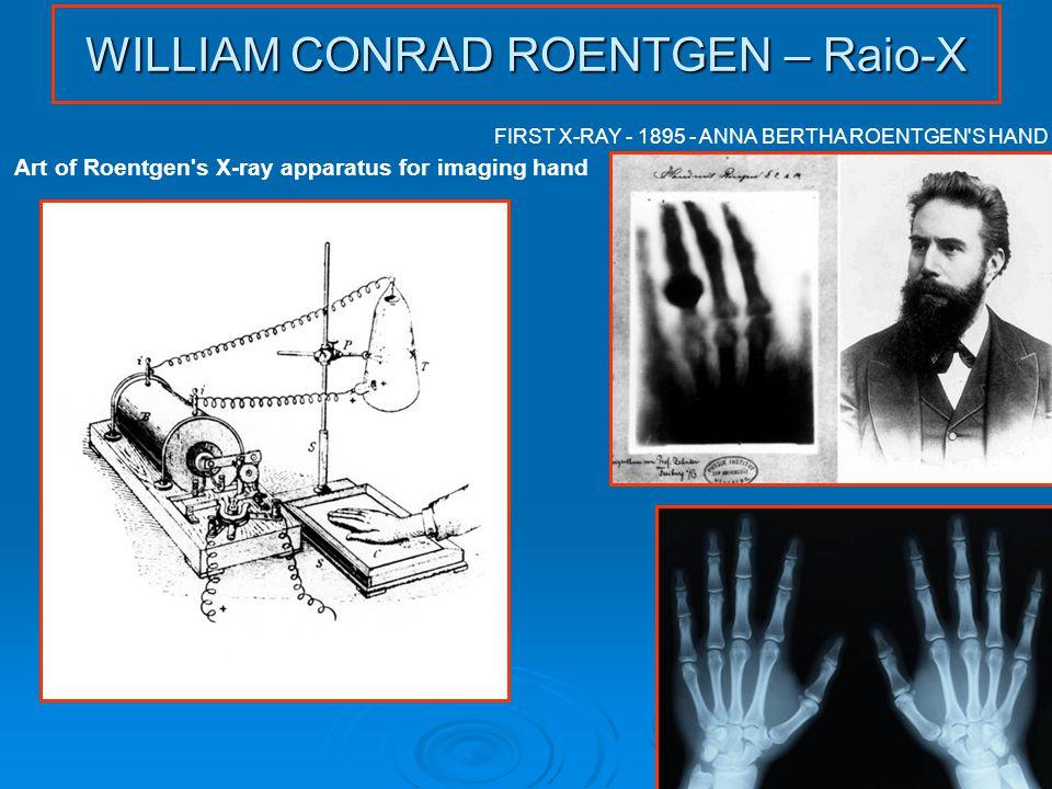 WILLIAM CONRAD ROENTGEN – Raio-X