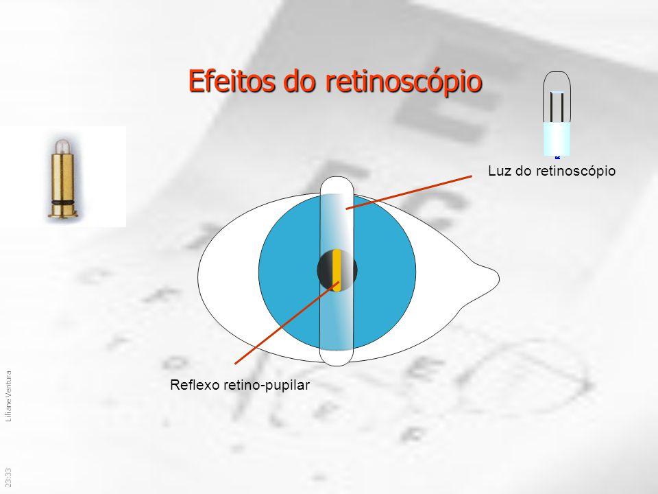 Efeitos do retinoscópio