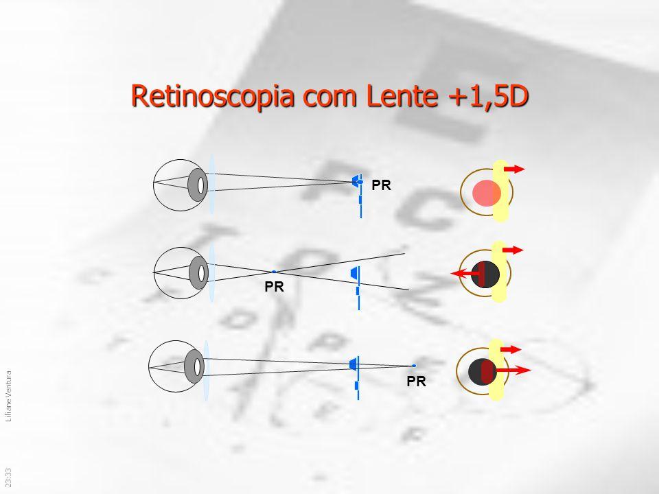 Retinoscopia com Lente +1,5D