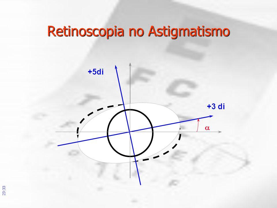 Retinoscopia no Astigmatismo