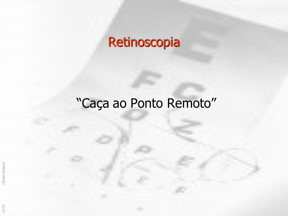 Retinoscopia Caça ao Ponto Remoto 03:59 Liliane Ventura