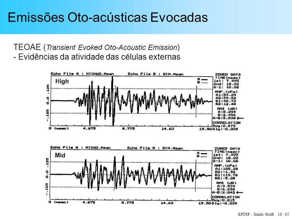 Emissões Oto-acústicas Evocadas