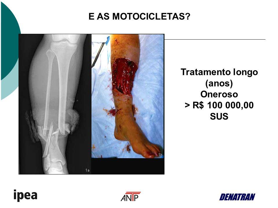 E AS MOTOCICLETAS Tratamento longo (anos) Oneroso > R$ 100 000,00 SUS
