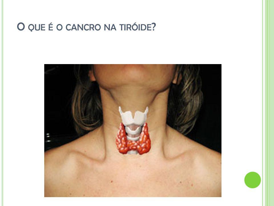 O que é o cancro na tiróide