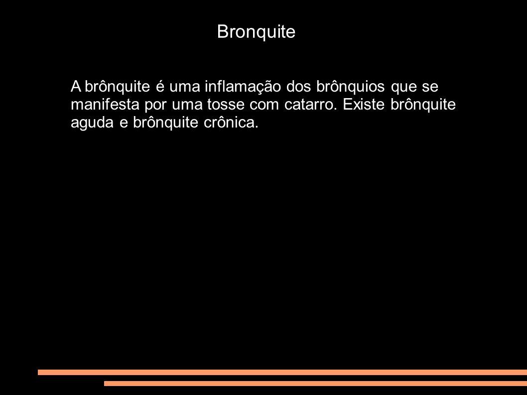 Bronquite A brônquite é uma inflamação dos brônquios que se manifesta por uma tosse com catarro.