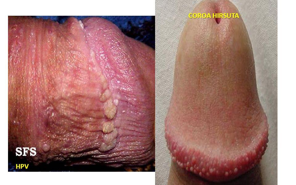 COROA HIRSUTA HPV