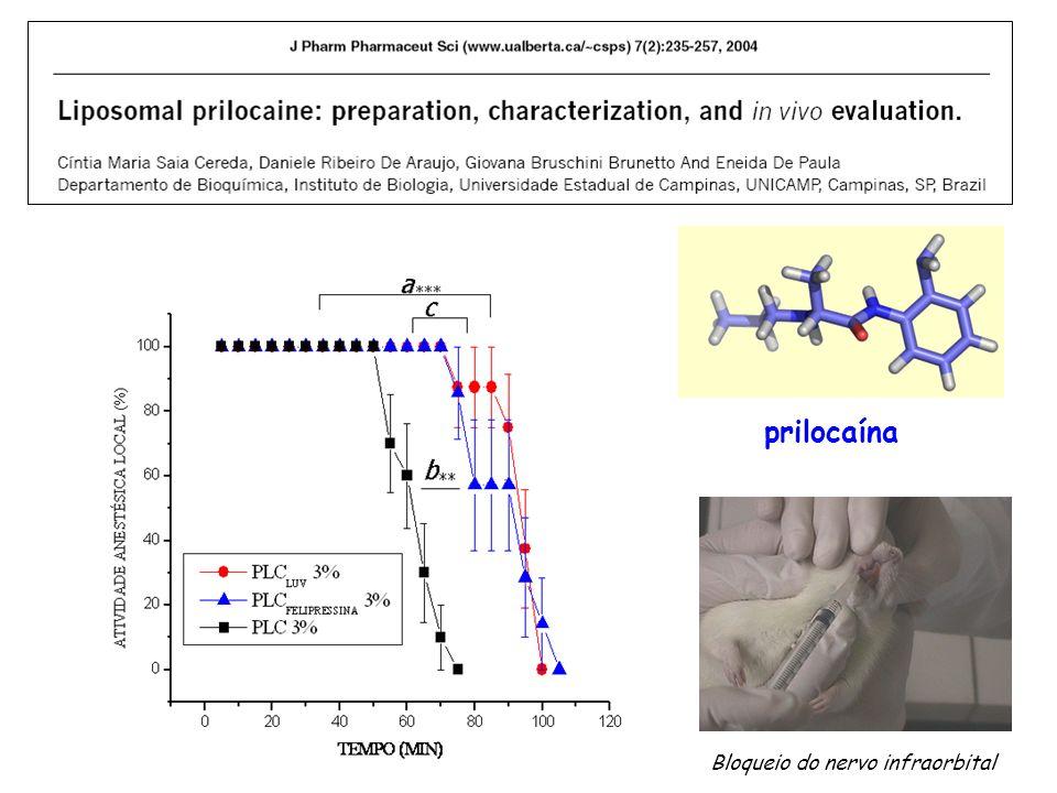 prilocaína Bloqueio do nervo infraorbital