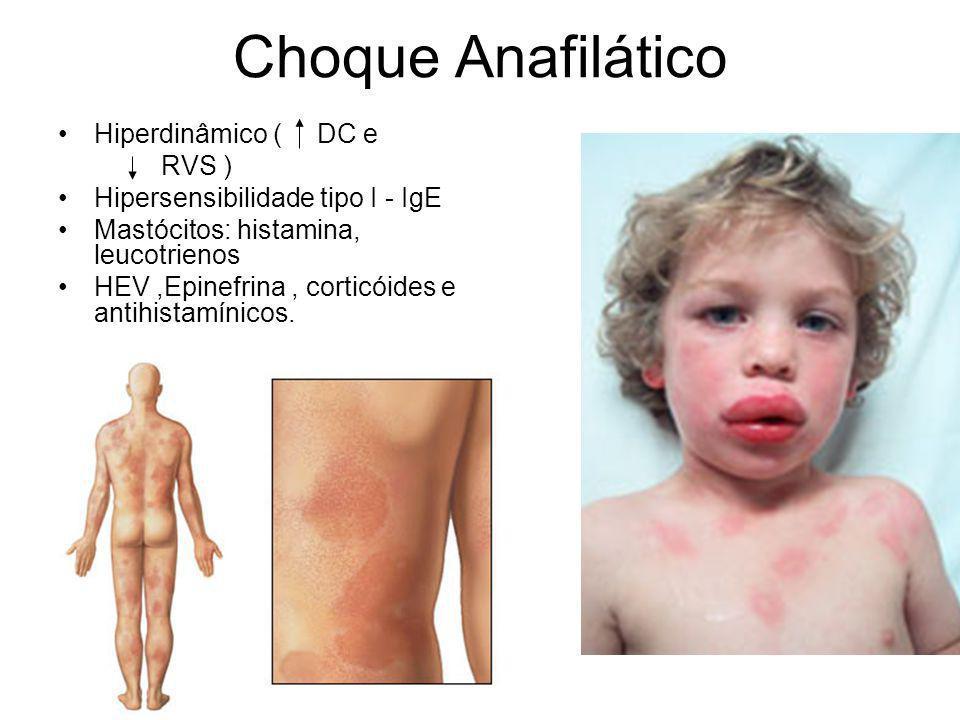 Choque Anafilático Hiperdinâmico ( DC e RVS )