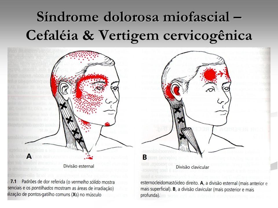 Síndrome dolorosa miofascial – Cefaléia & Vertigem cervicogênica