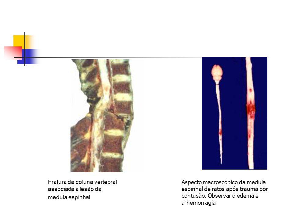 Fratura da coluna vertebral associada à lesão da medula espinhal