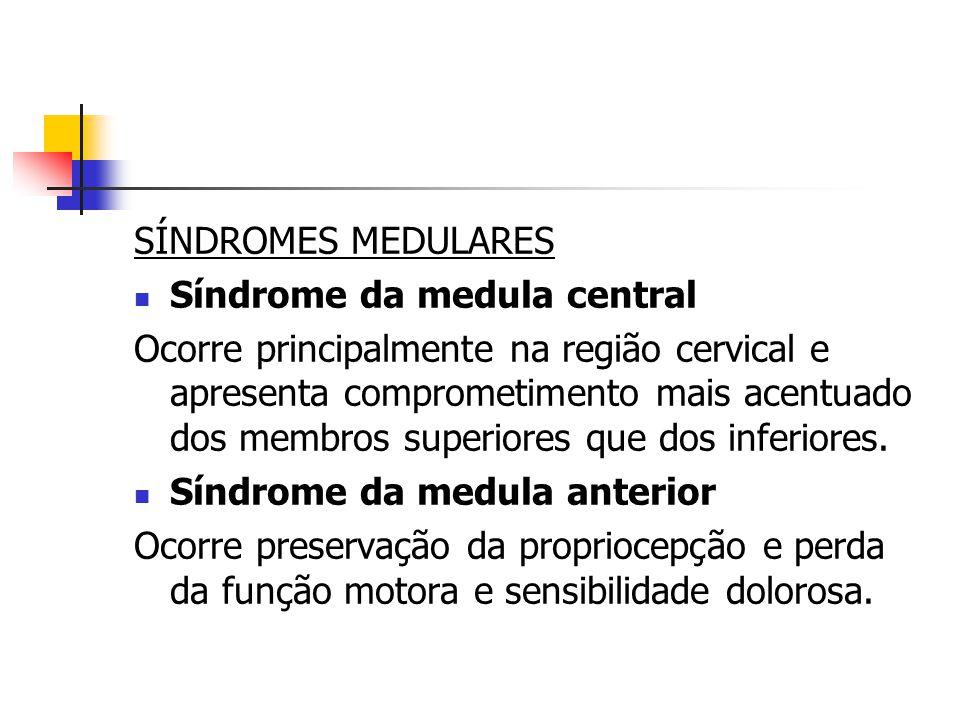 SÍNDROMES MEDULARES Síndrome da medula central.