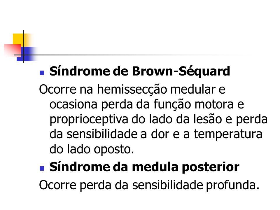 Síndrome de Brown-Séquard